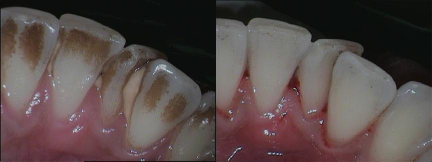 Seri Artikel Dental 'Apa Sih Yang Dilakukan Oleh Dokter Gigi' : Pembersihan Karang Gigi (Scaling Teeth)